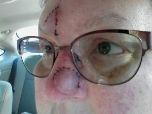 After flap removal, with glasses (yay!).