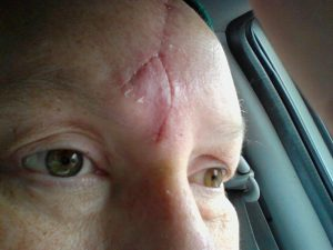 5-16, after removal of stitches, roughly 7 weeks after reconstruction.